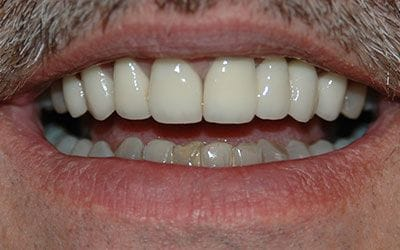 Beautiful white smile after dental treatment