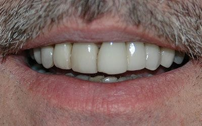 Discolored teeth before dental treatment