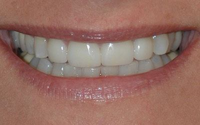 Top tooth whitened and healthy after cosmetic dentistry