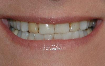 Yellow colored top tooth before cosmetic dentistry