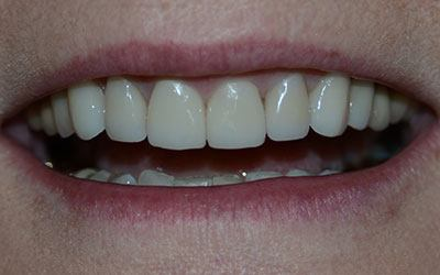 Bright white and healthy teeth after dental treatment