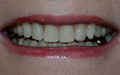 Disocolored and worn teeth before dental treatment
