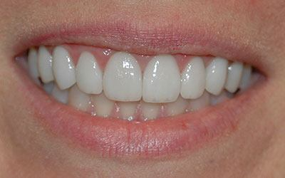 Brilliant white smile after teeth whitening