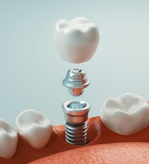 Animated dental implant supported tooth replacement