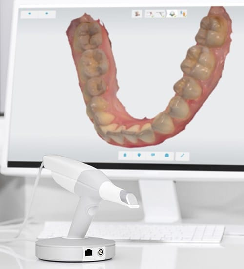 Digital smile impression on chairside computer