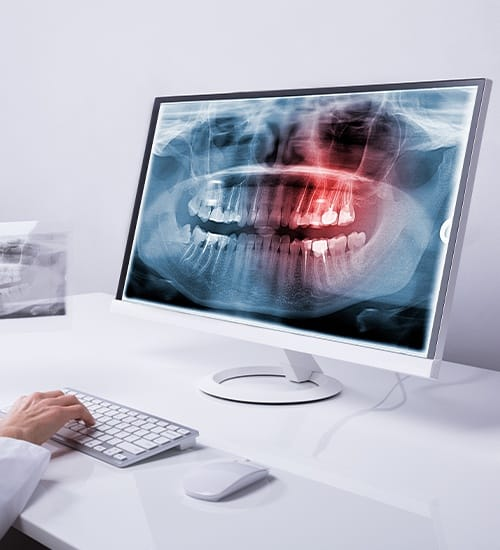 Dentist using Panorex digital x-ray imaging system